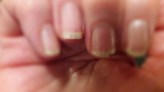 Vorher: Unsere Klimawechselbotschafterin Gabi mit brüchigen Nägeln