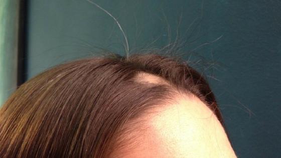 Doppel-Jackpot! Haarausfall und fliegende Haare! Klimabotschafterin Inge macht es vor ;)